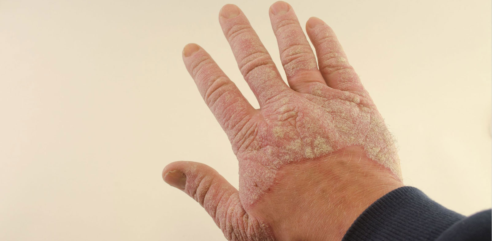 Psoriasis is a Deadly Skin Disease