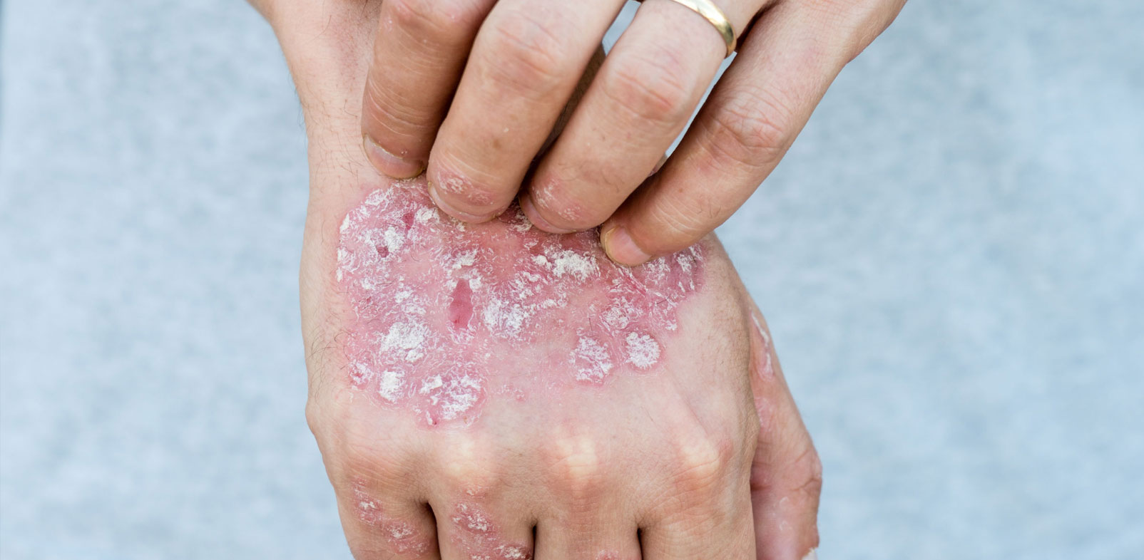 What are the Types of Psoriasis Creams to Treat a Patient?